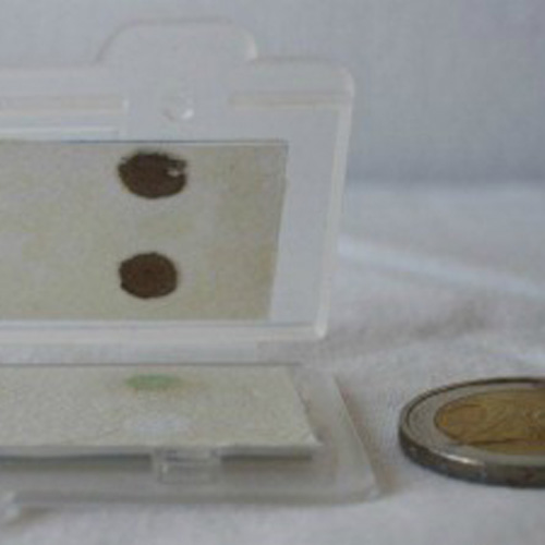 14-superbug-kit