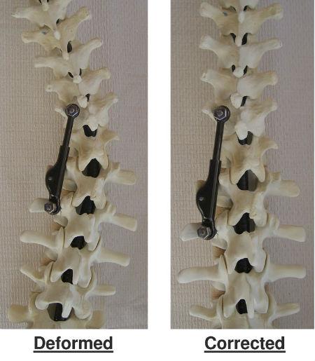 spine-apifix