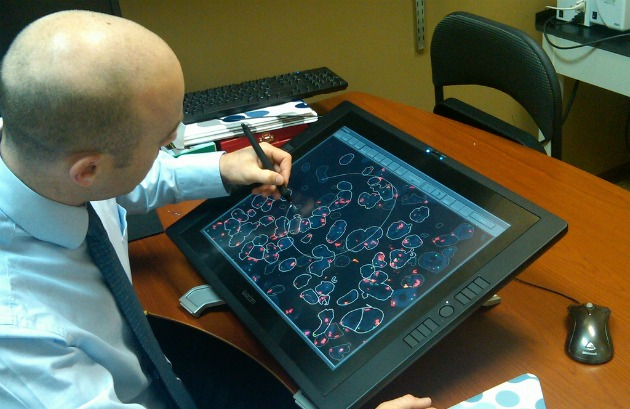 BioView technology lets caregivers identify lung cancer non-invasively.