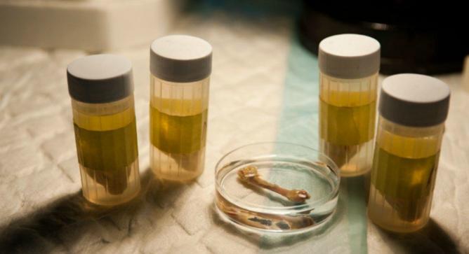 The bone takes a few months to grow inside a unique bioreactor.