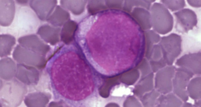 Leukemia cells dividing. Photo courtesy of Public Library of Science