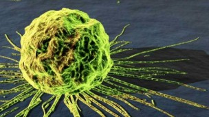 Cancer cells are targeted directly by Immune Pharmaceutical's guided treatment.