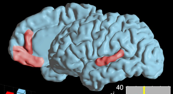 This image highlights two language areas in the brain where cell responses during speech were researched and mapped out. Image courtesy of Ariel Tankus