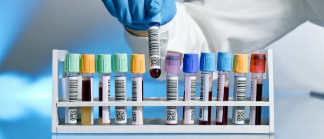 A simple blood test could be on the way for diagnosing Alzheimer's disease. Image via Shutterstock.com