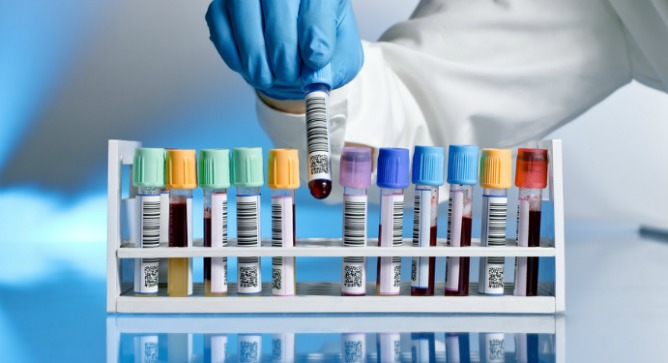 Contaminated blood could serve as diagnostic predictor for more targeted antibiotics. Image via Shutterstock.com