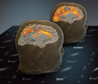 The brain image at the back presents spontaneous (resting state) patterns before a fMRI-based neurofeedback training session. The front brain image presents spontaneous (resting state) patterns a day after the training session.