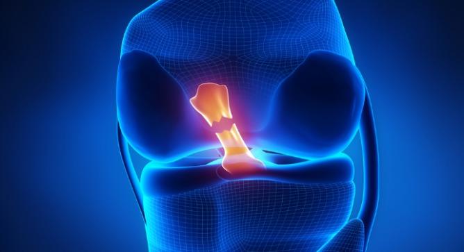 An anterior cruciate ligament. Image via Shutterstock.com.