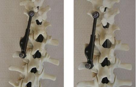 ApiFix implant