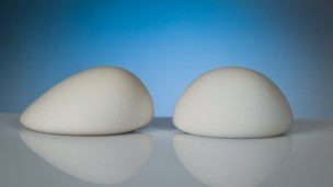 B-Lite implants weigh 30 percent less than conventional implants.