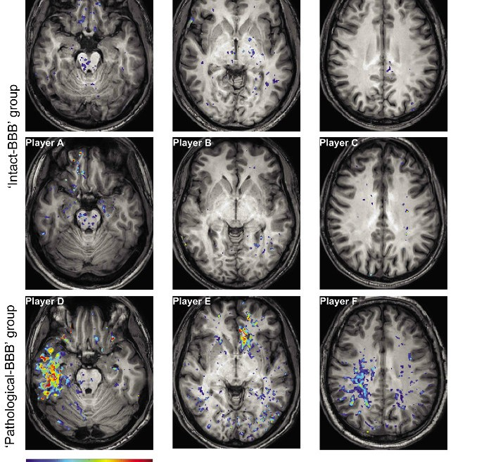Images from the Ben-Gurion University of the Negev JAMA Neurology study.