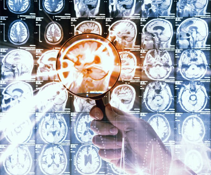 Israeli researchers have found  an innovative approach combining nanotechnology and molecular biology to tackle brain cancer. (Shutterstock.com)