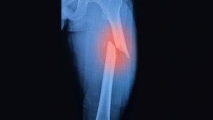 Image of fractured femur via Shutterstock.com