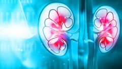 Galil Medical delivers innovative cryotherapy solutions for kidney cancer. Photo via Shutterstock.com