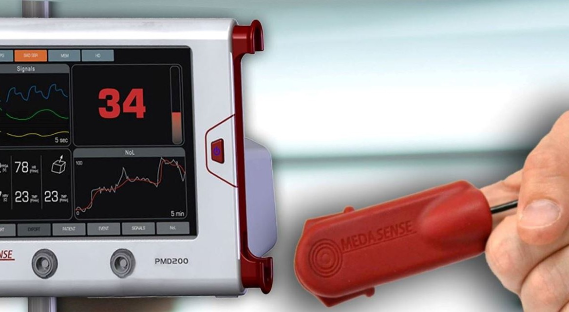Medasense's finger-mounted sensor records relevant physiological signs, and algorithms convert this data into a real-time, continuous pain index displayed on a bedside monitor. Photo courtesy