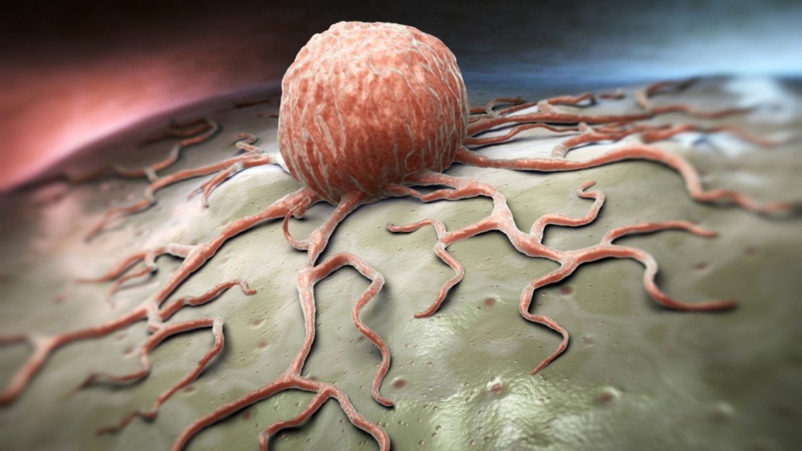 Image of cancer cell by Tatiana Shepeleva/Shutterstock