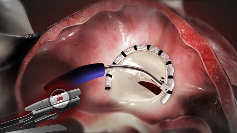 The Cardioband System for transcatheter repair of the mitral valve. The Cardioband System is not approved for sale in the United States. (PRNewsFoto/Edwards Lifesciences Corporation)