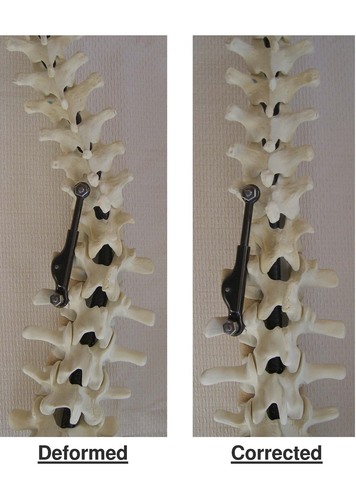 The ApiFix implant allows for incremental correction of the curvature by relaxing and realigning the ligaments and muscles surrounding the spinal column. Photo: courtesy