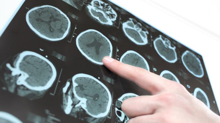 Kombinationstherapie für neurologische Erkrankungen