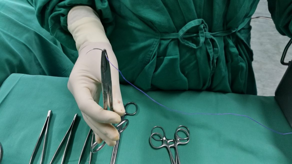 Israeli device simplifies hernia surgery and recovery