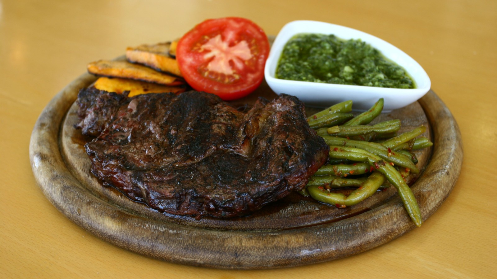 Dairy And Red Meat Increase Risk Of Colorectal Cancer Israel21c