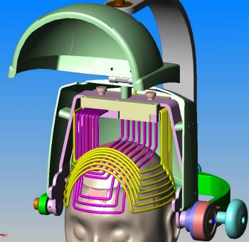 Brainsway device