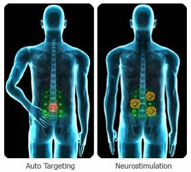 Nervomatrix scan