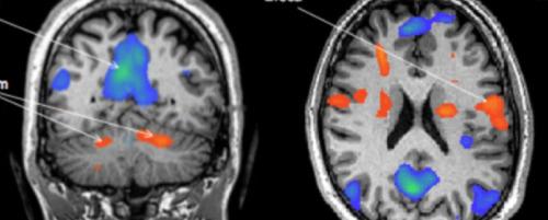 Weizmann Institute Sniffing Technology fMRI